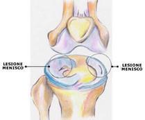 Lesione dei menischi - Fisioterapista Antonio Siepi