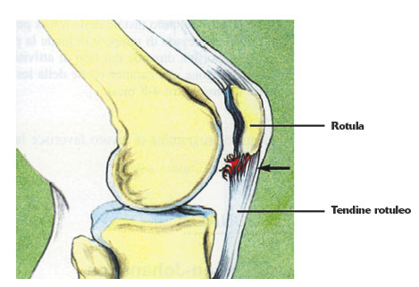 sindrome femoro rotulea - Antonio Siepi - Fisioterapista